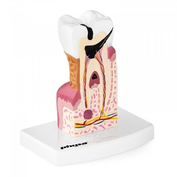 Tooth Model - Diseased Molar